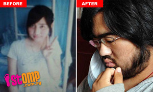 Young China Girl Grows A Beard After Medical Treatment
