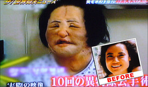 Korean Woman's Face Deformed After DIY Cooking Oil Injections