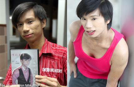 Meet Kurt, The Singapore Man With Boobs